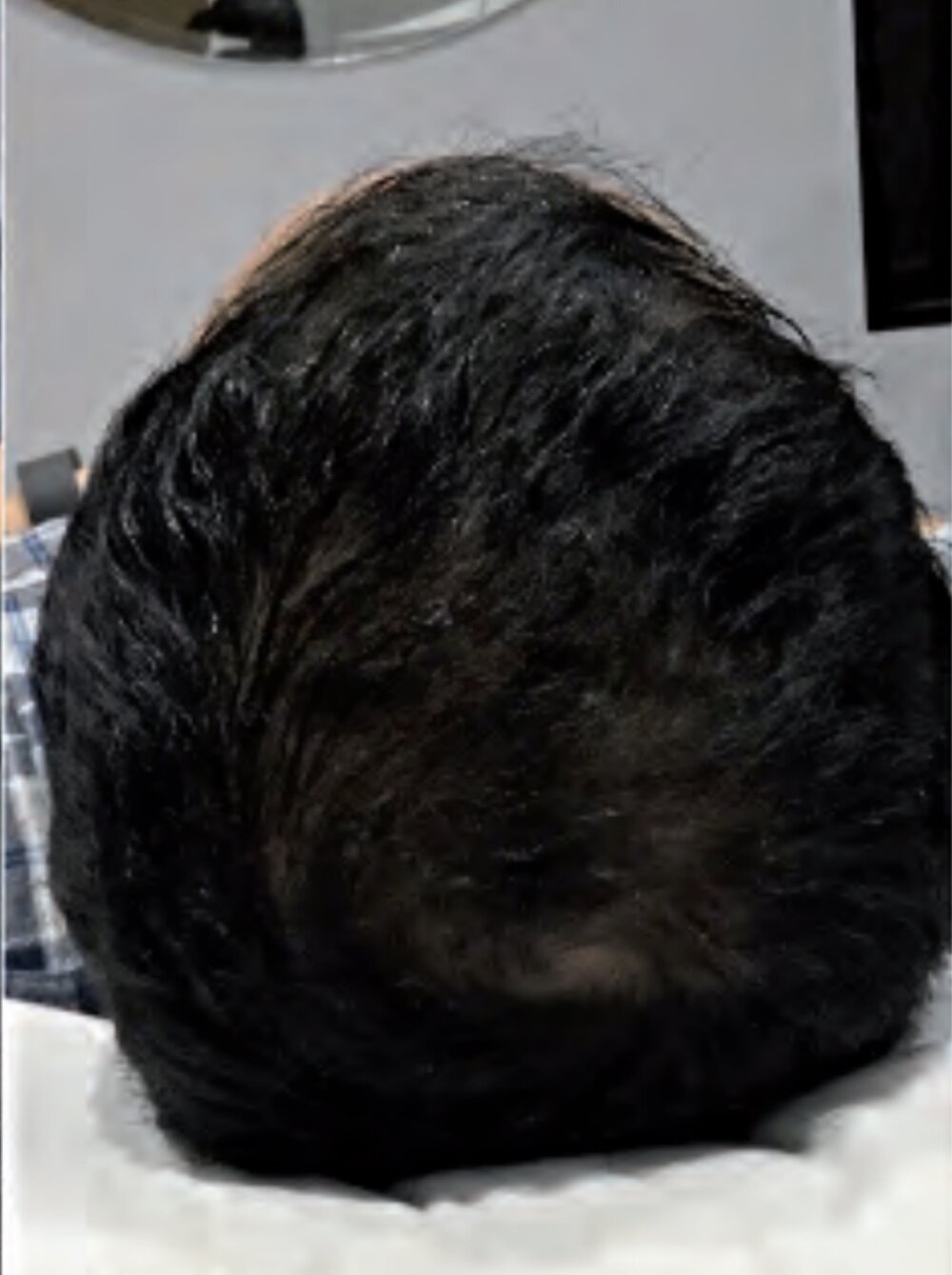 HairRestorationAfter